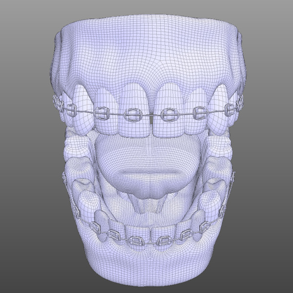 3d model mouth dental braces - Mouth with Dental Braces... by Human Factory