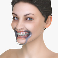 3d female orthodontic teeth face