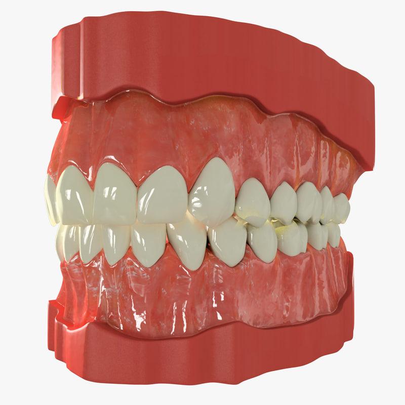 Teeth_Preview.jpg