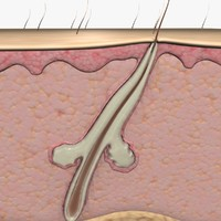 Acne Hair Folicle (Animated)