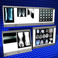 Xray Light Boxes 01