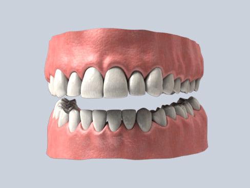 Teeth_11.jpg