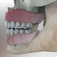 3d model edentulous dental prosthesis