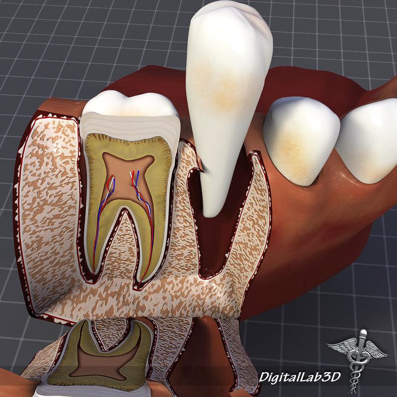 DL3D_TeethGums3.JPG