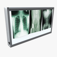X-ray Lightbox