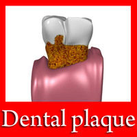 tooth dental plaque 3d model