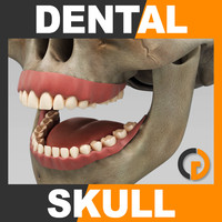 Human Dental Skull - Anatomy