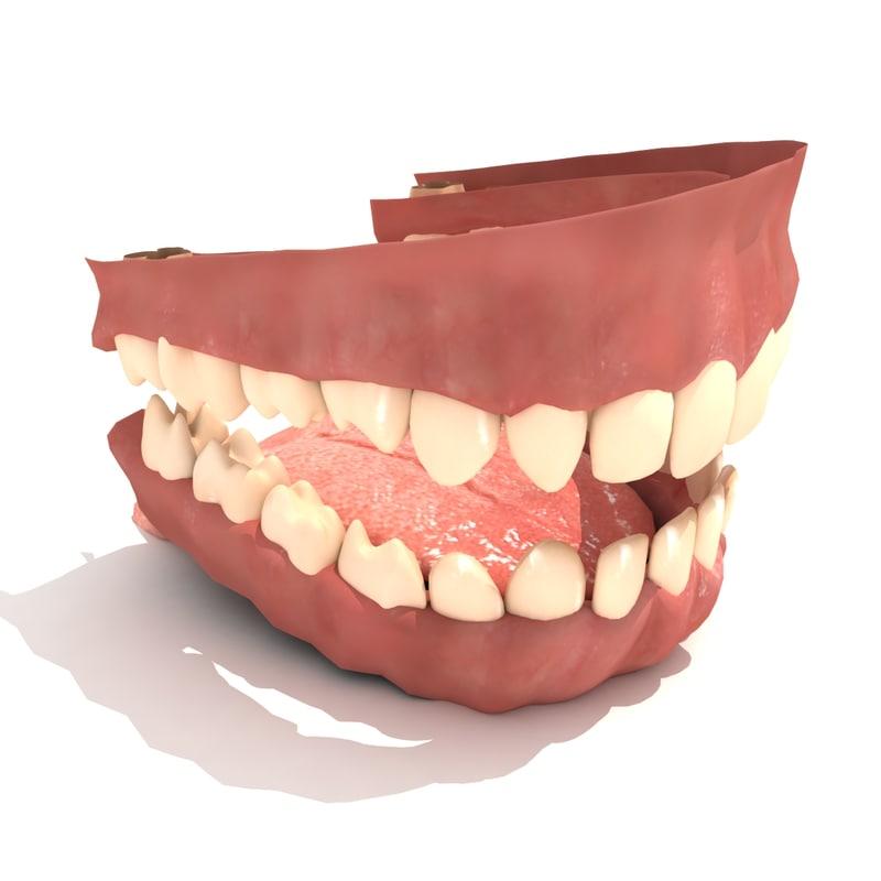 teeth_1.jpg