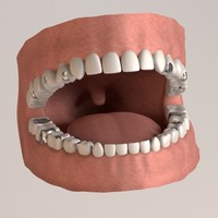 human teeth fillings 3d model