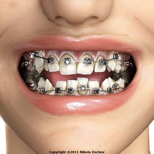 D Model Orthodontics Dental V