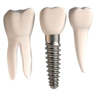 tooth implant + teeth