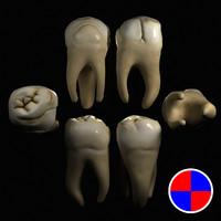 maxillary molar 3d model
