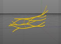 3d nerves brachial plexus