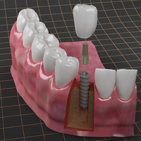 3d max dental implant