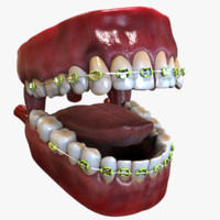 3d mouth dental braces model