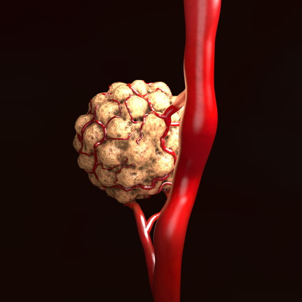 tumor vessels 3d obj - Tumor with Vessels... by scyrus