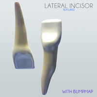 lateral incisor 3ds