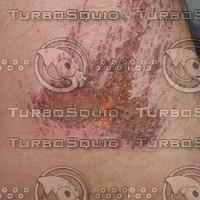 Skin Damage 1