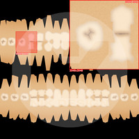 Teeth Maps (from Eva 3.1)