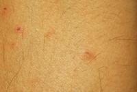Human pimple skin texture 02