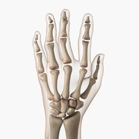 arthritic hand 3d model