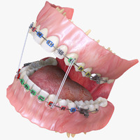 realistic dentition braces 3d max