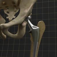3d model femoral prosthesis complete skeleton