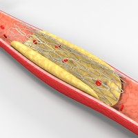 medical cardiovascular stent 3d model