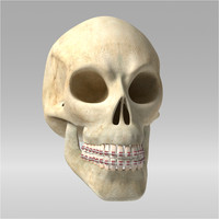 3d skull orthodontic model