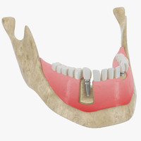 3d dental implant model