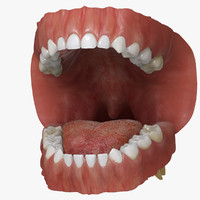 3d mixed dentition model