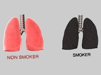 3d human lungs smokers