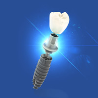 3d model dental implant