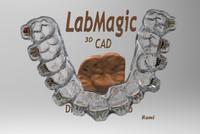 free digital orthodontic dental 3d model
