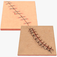 3d model staples sutures