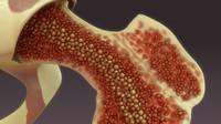 3d model bone marrow